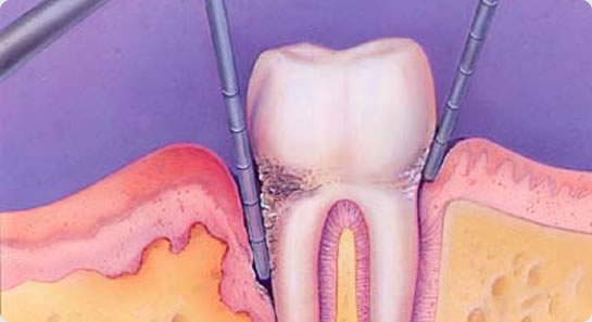 牙菌斑 是造成牙周病的主因, 每天在我們牙齒的表面都會有牙菌斑的形成,尤其是在牙齦的界線邊緣。活的細菌在牙菌斑中增生,並會釋放出毒素破壞牙齦,並使牙齦發炎,而此發炎階段就是牙周病的開始。若你沒有立即清除牙菌斑,超過一天後,牙菌斑會形成難以清除的結石。 從小到大,每個人都有牙痛的經驗,而其中最為常見的就是,源於深度齲齒造成的牙髓發炎。「牙髓」被包覆在牙齒中心的室腔內,由神經,血管,纖維組織及水分所構成。 外層由監硬的琺瑯質及牙本質保護,當牙齒受到齲齒或外力的損害時,就有可能引起牙髓一連串的病變,導致牙髓充血
